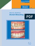 Dental Bleaching - Martin