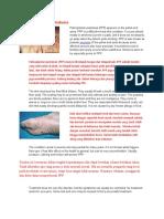 Palmoplantar Pustulosis Translate