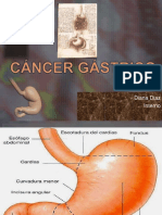 Cancer Gastrico Hns