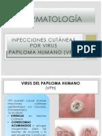 Dermatología - VPH