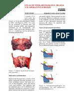 Supracricoid+laryngectomy