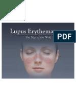 Lupus Full
