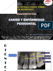Caries y Enfermedad Periodontal