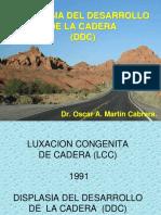 Displasia Del Desarrollo de La Cadera,,,.2009ppt