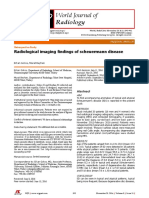 Radiological Imaging Findings of Scheuermann Disea