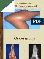 Osteosarcoma g