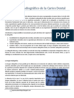 Diagnóstico Radiográfico de La Caries Dental