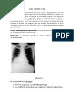 CASO VIH-TB