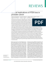 Clinical Implications of PTEN Loss in Prostate Cancer