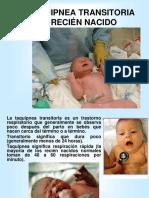 LA TAQUIPNEA TRANSITORIA DEL RECIÉN NACIDO.ppt