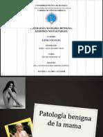 Patologia Mamaria Benigna