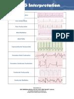 10 Common EKG Heart Rhythms.pdf