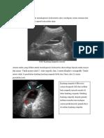177308873-Acute-Cholecystitis.docx