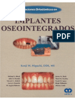 Aplicaciones Ortodoncicas en Implantes