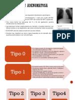 Malformación Adenomatosa Quística(Maq)