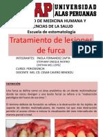 Tratamiento de Lesiones de Furca Power Point
