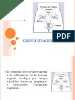 Cervico Vaginitis