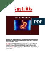Eliminar La Gastritis PDF GRATIS