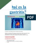 Qué Es La Gastritis PDF GRATIS.