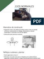 Reflejos óseo-tendinosos