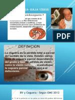 Sordo Ceguera- Baja Vision