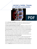 Discopatia Cervical y Lumbar