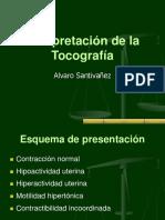 Interpretación de La Tocografía