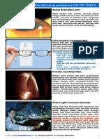 Bedah mata Laser - melihat lebih baik dg pembedahan - MedicineNet.pdf