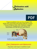 Disc Dislocation With Reduction