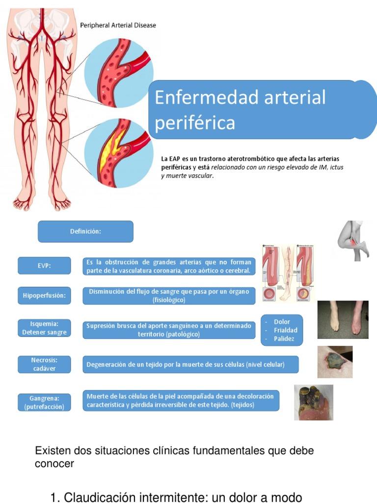 Enfermedad Arterial Periferica Especialidades Medicas Sistema Cardiovascular