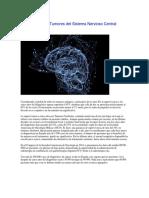 Los Avances en Tumores Del Sistema Nervioso Central