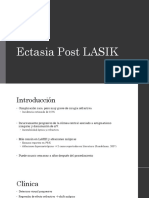 Ectasia Post LASIK A