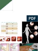 parche-e-implante.pptx