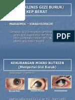 6. Tatalaksana Gizi Buruk-2.pptx