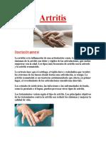 Cura Para La Astritis PDF GRATIS.