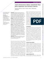 DAVF - Transarterial Onyx Embolization