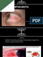 episkleritis.pptx