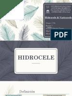 hidrocele-varicocele.pptx