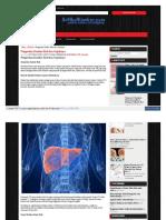 www_artikelkanker_com_pengertian_kanker_hati_dan_gejalanya.pdf