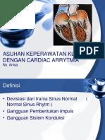 206616320-Aritmia-ppt.ppt