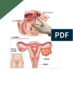 Qué es el cáncer de seno.docx