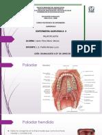 palatoplastía