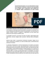 La Parotiditis1111111