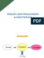 Terapi Lesi Prakanker