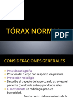 TÓRAX NORMAL clase - practico.pptx