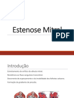 Estenose Mitral.pptx
