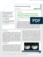 A case Report of Perforated Primary Follicular Lymphoma of the Jejunum presenting as Aneurismal Form