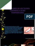 Alterciones de Lotejidos Dentarios a Altas Temperaturas Ultima