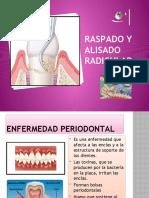 presentacion_raspado