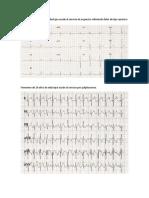 CASOS CLINICOS EKG.docx
